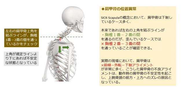 肩甲骨の位置異常