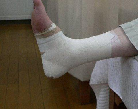 足関節をtw-ピング