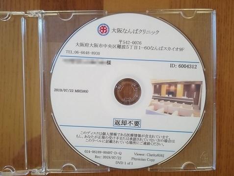2 DVD が同梱されている