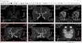 10 脳ドッグの写真 6画面 大