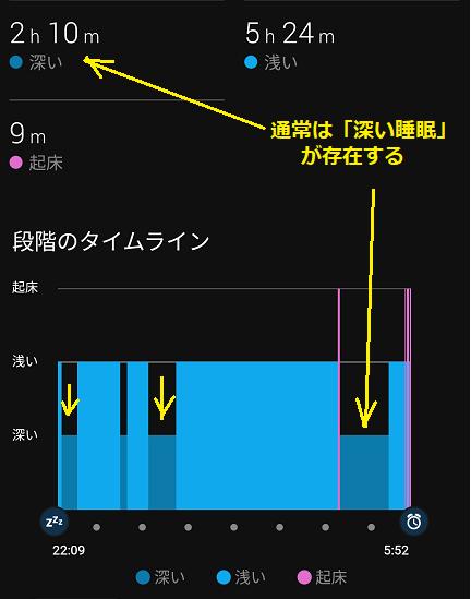 6 通常の睡眠状況グラフ