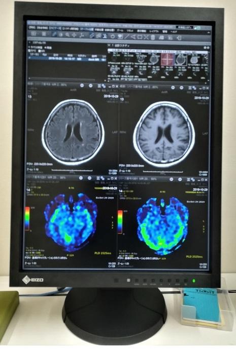 2 MRIの画像