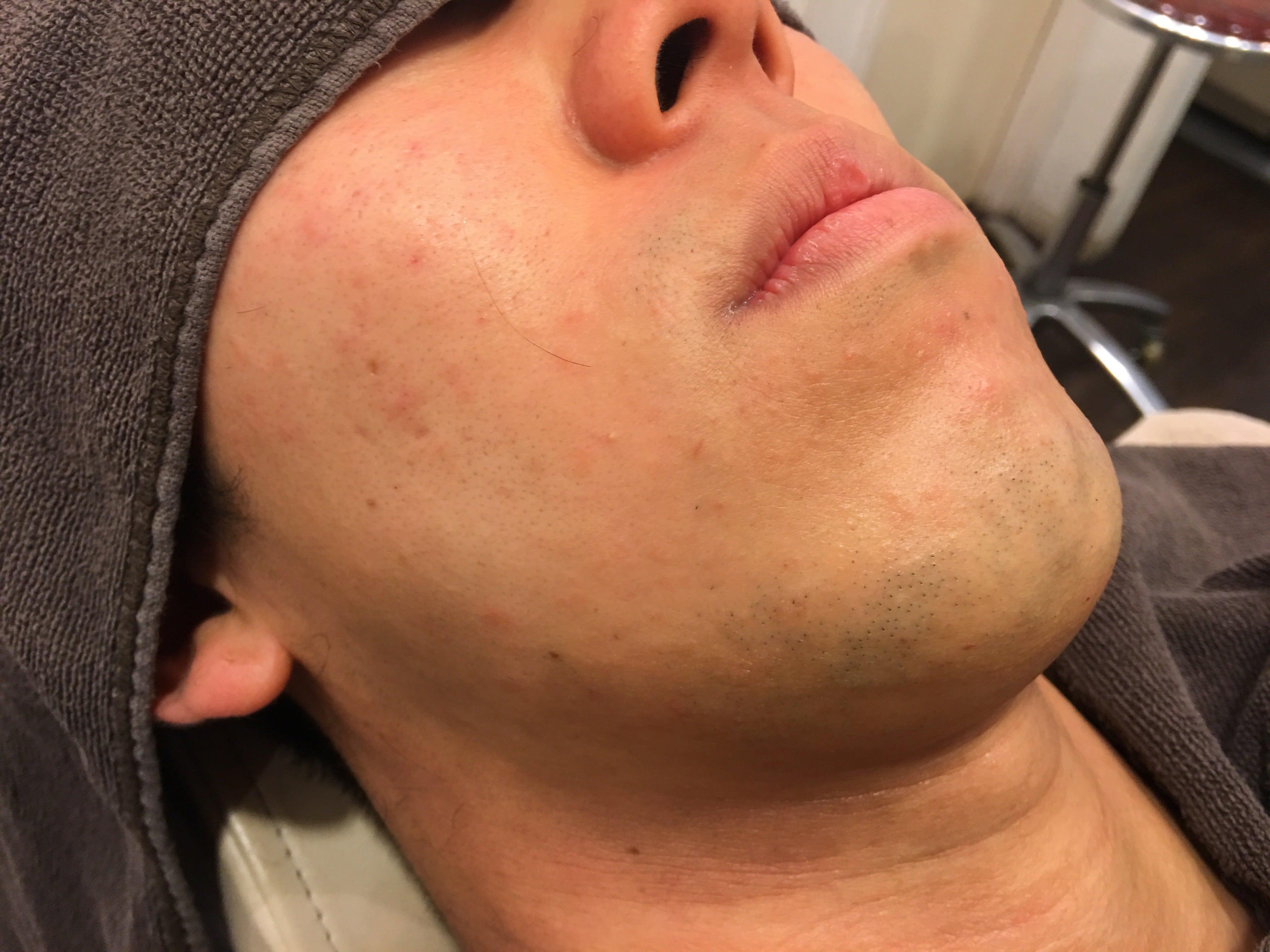KA様 男のひげ脱毛2回目終了後 (3)
