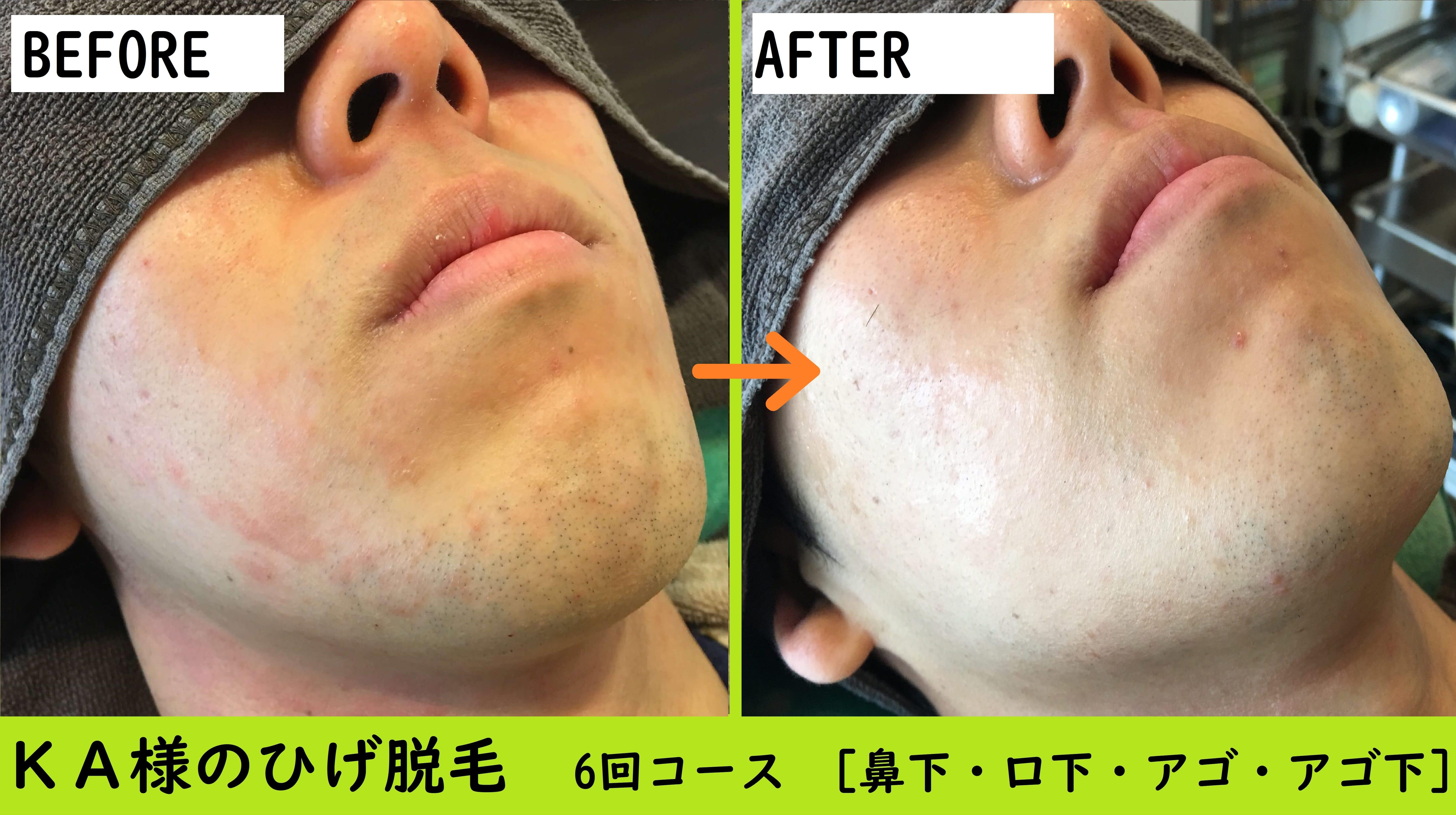 KA様のひげ脱毛完了 (2)