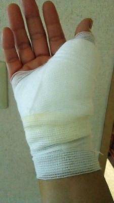 ばね指の手術